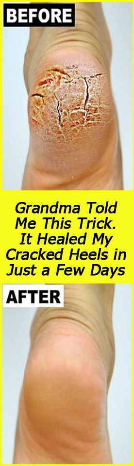 Cracked heels is not only a serious health condition it is also very painful persistent and can impair the quality of life.