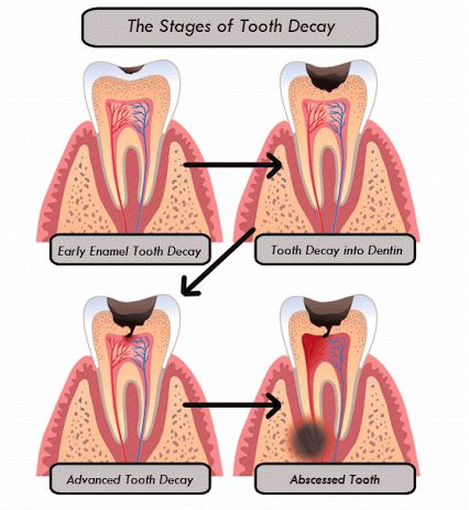 The Stages of Tooth Decay:  1.	Early Enamel Tooth Decay.  2.	Tooth Decay into Dentin. 3.	Advanced Tooth Decay. 4.	Abscessed Tooth needing Extraction or Rootcanal