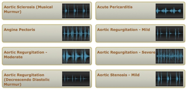 Heads up Nursing Students! www.easyauscultation.com     This is a really good website for listening to heart sounds like S3 & S4