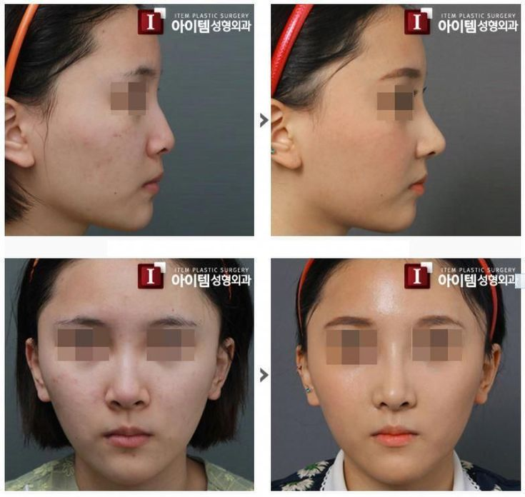 [Nose surgery – Boulbous Nose] plastic surgery in korea, cosmetic surgery in korea, asian plastic surgery, nose surgery, rhinoplasty, nose job, beauty, before and after surgery