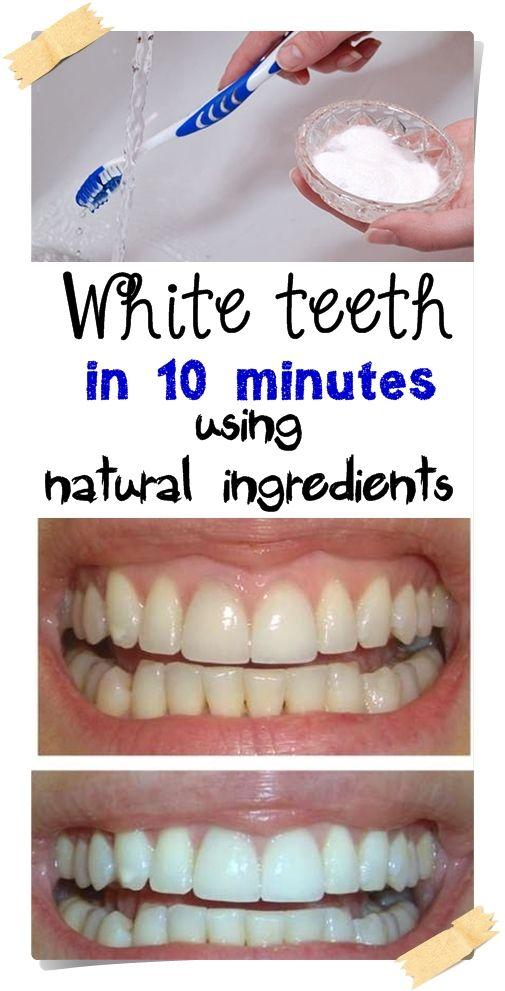 White teeth in 10 minutes using natural ingredients