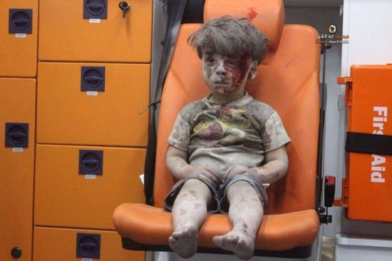 Aleppo's Boy in Ambulance Omran Daqneesh 'Fine and Well,' Rescuer Says. These babies. Don't just pray for them, we need to see what we can do to help them.