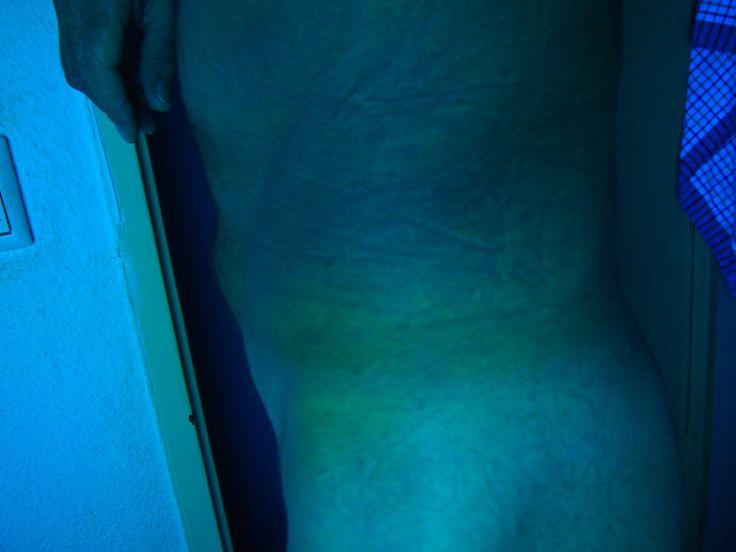 das blaue sind schwellungen mikrowellen folter pinterest. Black Bedroom Furniture Sets. Home Design Ideas