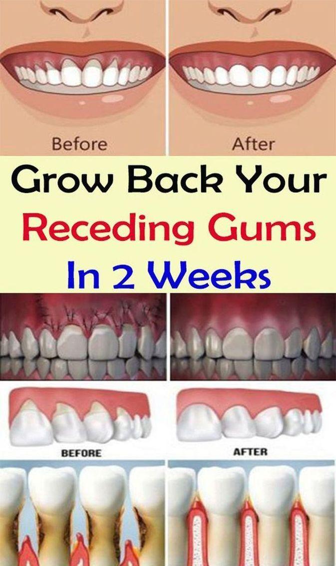 Grow Back Your Receding Gums In 2 Weeks
