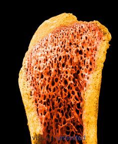 A long bone showing the compact bone ,yellow, surrounding the spongy or cancellous bone                                                                                                                                                                                 Mais
