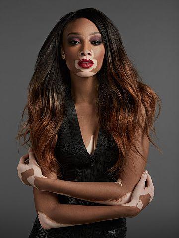 130 best images about Vitiligo Beauty on Pinterest
