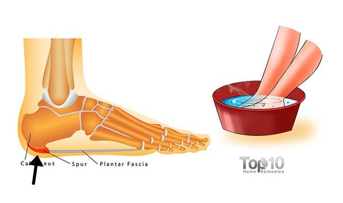 how to get rid of calcium deposits in feet