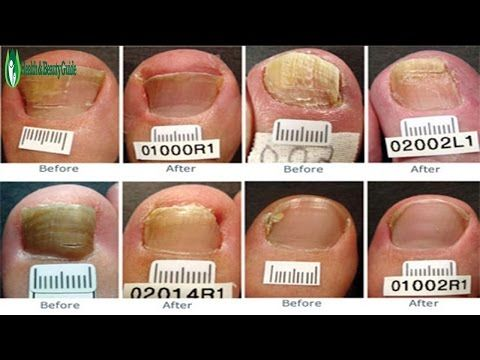 How to Get Rid of Toenail Fungus Fast - how to get rid of toenail ...
