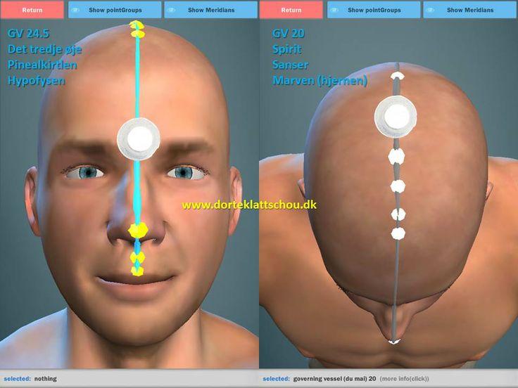 akupunktur plastre