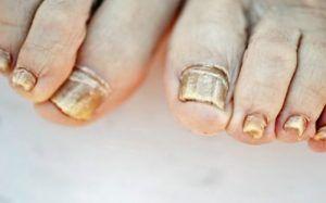 Esta receta súper fácil de 2 ingredientes eliminará los hongos de las uñas para siempre.Los hongos en las uñas también son conocido como onicomicosis o tinea unguium es la enfermedad más común de las uñas y constituye aproximadamente la mitad de todas las anomalías de las uñas. Anuncios El síntoma más común de una infección …