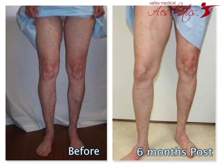 how to put on compression stockings for varicose veins