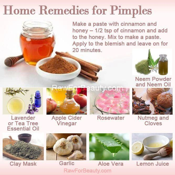 home remedies for pimples kitchen beauty pinterest