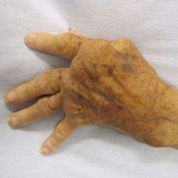 Rheumatoid Arthritis Causes And Symptoms
