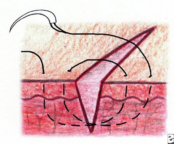 Suturing Techniques Background Indications Technical Considerations Suture Techniques Sutures Emergency Medicine