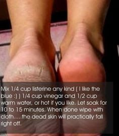 Mix 1/4 cup Listerine, 1/4 cup vinegar and 1/2 cup warm water, or hot if you like. Let soak for 10 to 15 minutes. When done wipe with cloth...the dead skin will practically fall right off. Soaking feet in vinegar (apple cider being best) for the softest feet ever and It's also a great remedy for many problems like toenail fungus, dry feet, tired feet, etc. .