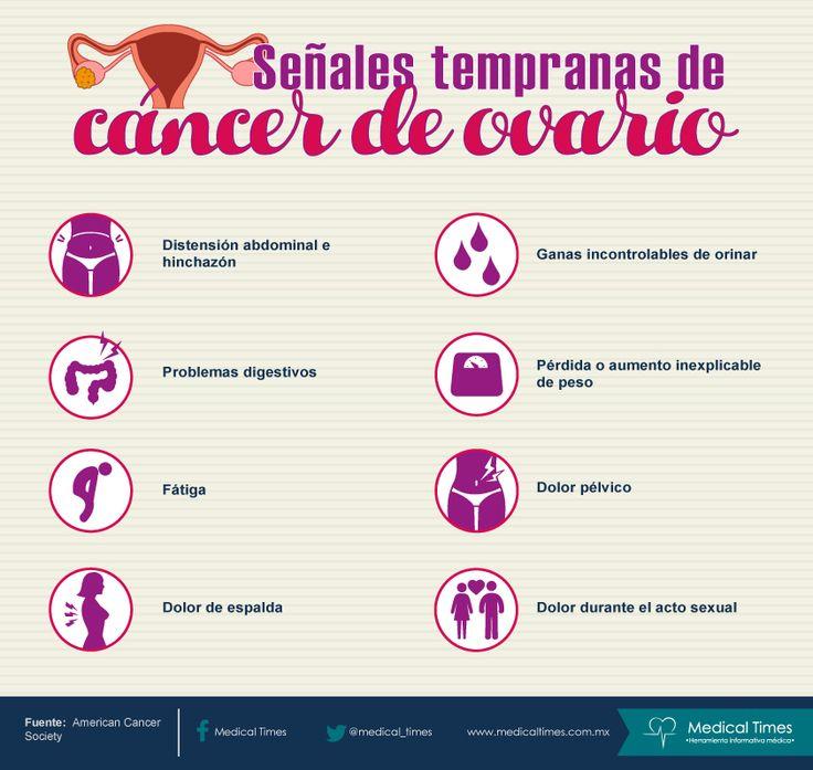 Señales tempranas de cáncer de ovario,  Medical Times, Infografía médica
