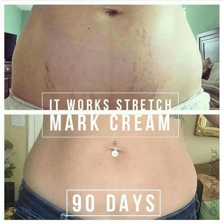 Would you replace your lotion with Stretch Mark Cream every day for 90 days if it did THIS?! If your answer is YES, let me know! I'm looking for product testimonies in exchange for my 40% discount! 918.284.6078