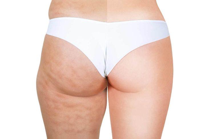 """Existen varios tratamientos para combatir la celulitis, hoy te mostraré unos trucos con vinagre de manzana que te ayudarán a reducir esa molesta """"piel de naranja. ¿Por qué vinagre de manzana? El vinagre de manzana elimina los excesos de grasa en nuestras células, también depura el organismo impidiendo que estos se acumulen en nuestro cuerpo. …"""
