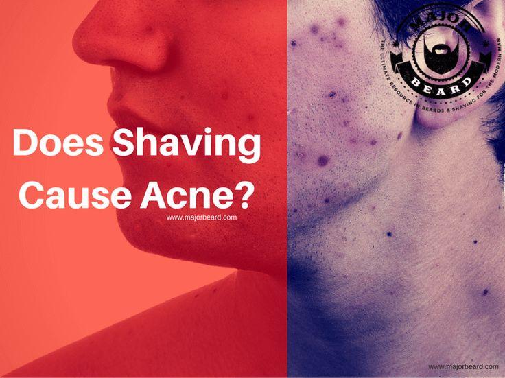 Does Shaving Cause Acne?  https://www.majorbeard.com/shaving/does-shaving-cause-acne/