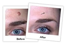 Doctors remove many moles every day, but there is always one recurring theme that dermatologists tell people: Be aware of your body and any moles that have changed over time. This is especially true for moles that are dark or flat.   Read more here ==> http://howtocurethat.com/