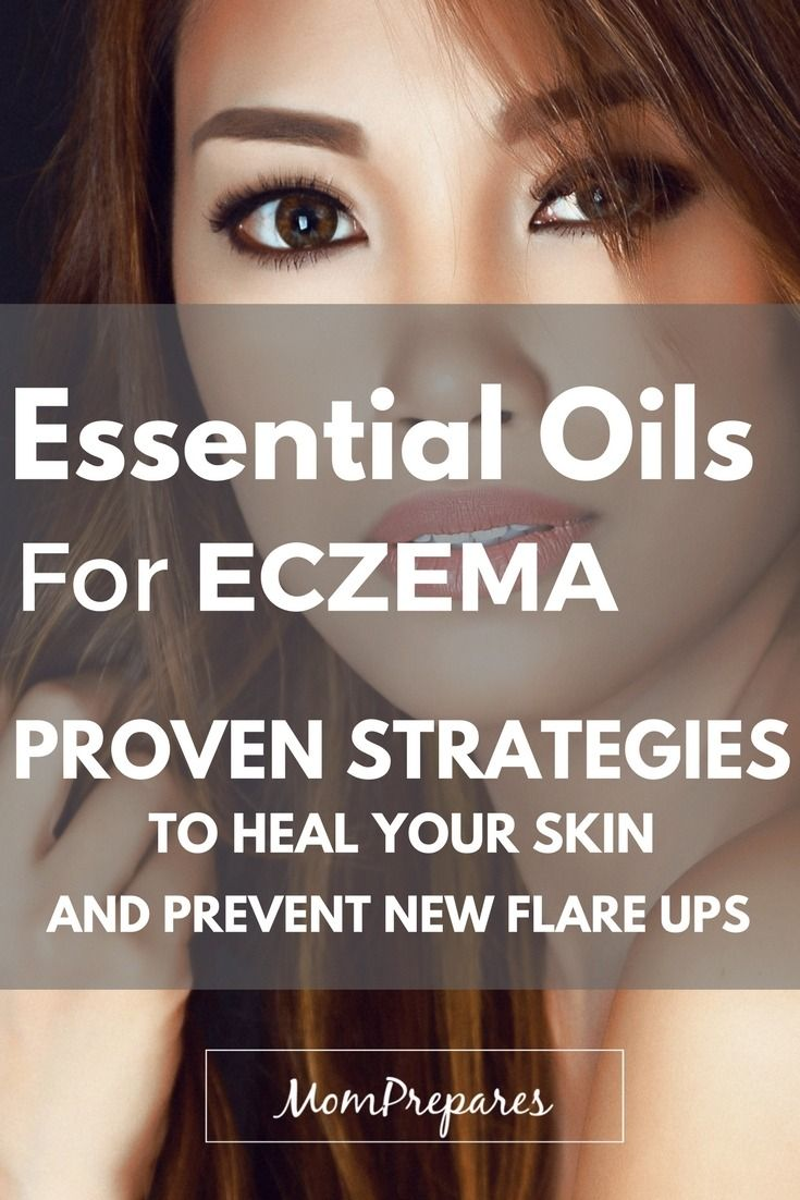 Essential oils can relieve eczema symptoms and bring your skin back to normal in no time. Read on for specific recipes and instructions. via @momprepares