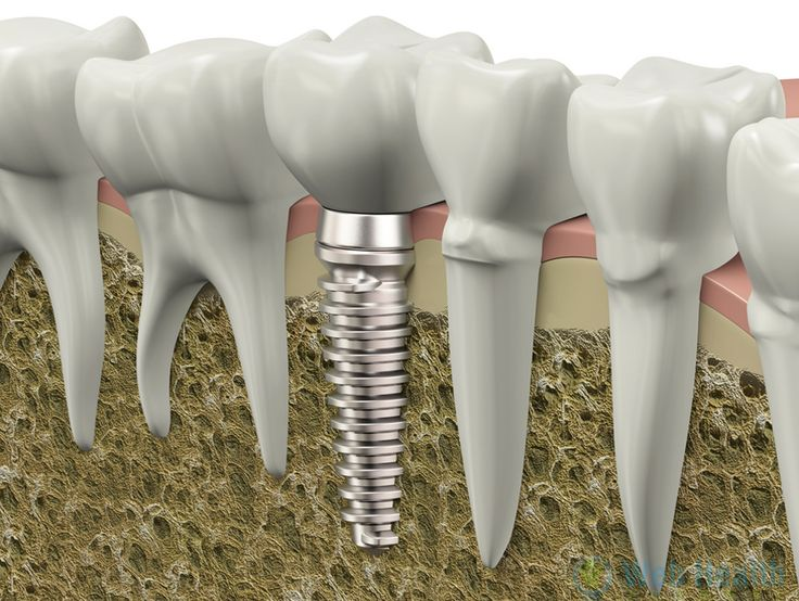 Single Tooth Implant | Dental Tooth Implants - Web Health Journal : #health #health_tips #healthy_living #health_care #dental_health #health_fitness #fitness
