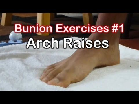 Bunion Exercises 1: Arch Raises to Avoid Bunion Surgery - YouTube