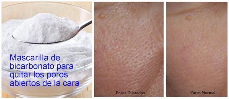Eficaz mascarilla de bicarbonato para cerrar poros abiertos, ¡es posible!