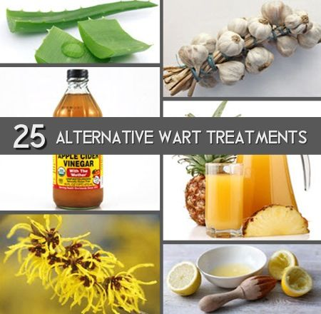 25 Alternative Treatments For Warts | Improved Aging