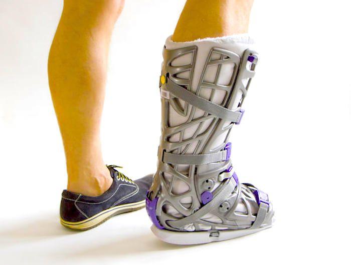Fractura de tobillo es una fractura que puede ocurrir en cualquiera de los tres posibles huesos del tobillos, la tibia, el peroné o el astrágalo. Recuperac