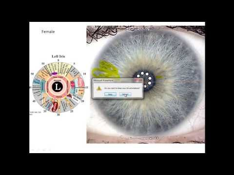 ▶ Iridology Review- How To Read Your Eyes For Health - YouTube