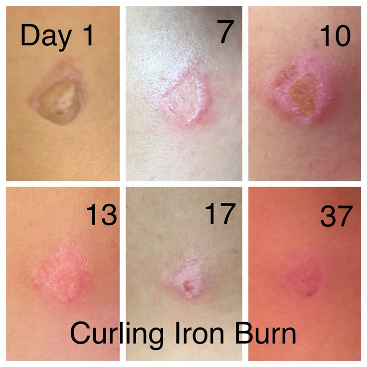 70 best images about 화상 on Pinterest | Burn injury, Home ...