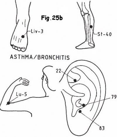 Gettting Relief from Asthma and Related Lung Conditions with Acupressure Therapy?