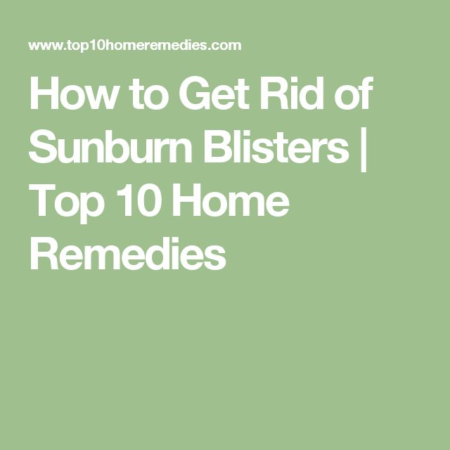 How to Get Rid of Sunburn Blisters | Top 10 Home Remedies