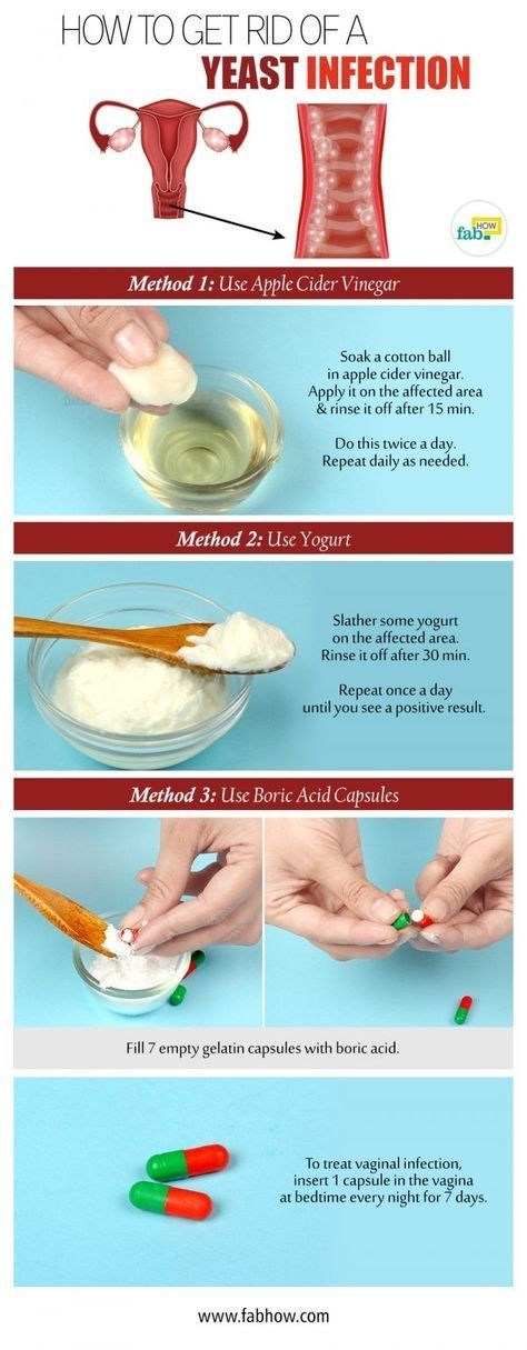 Home Remedy to Get Rid of a Yeast Infection by andrea