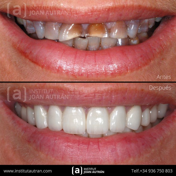 Carillas dentales Top Smile®