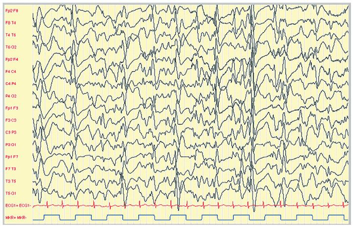 Continuous Spike Wave Discharges in Slow-Wave Sleep – don't let it catch you napping! | ACNR | Online Neurology Journal
