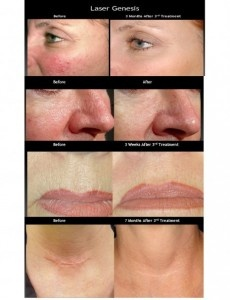 Laser Treatments aren't just for hair removal!  It can...improve wrinkles and fine lines,  produce new collagen, smooth uneven skin surfaces and even skin tones, help tighten and reduce the size of large pores and other skin redness, improve melasma/deep hyperpigmentation/brown sun spots, and reduce surface scars from acne, surgery or injuries
