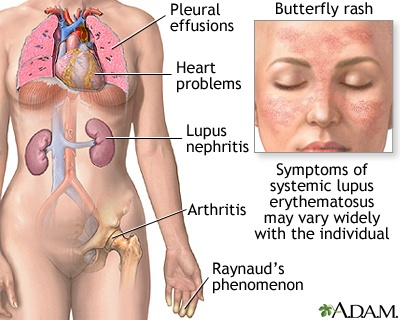 Lupus, Causes and Treatment