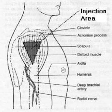 Deltoid Intramuscular Injection  http://jagged81.hubpages.com/hub/Deltoid-Intramuscular-Injection