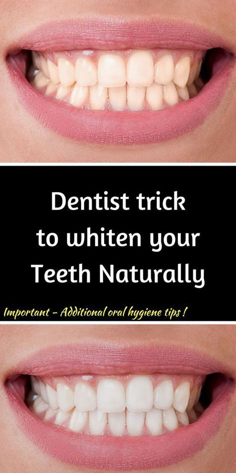Remove Plaque and Tartar and Whiten your Teeth with this DIY remedies!