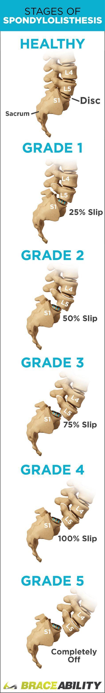What is spondylolisthesis? Learn how spondylolisthesis is diagnosed, treatment options, symptoms, causes & the different levels: grade I, grade II, grade III, grade IV, & grade V. | BraceAbility