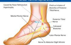 foot pain & its anatomical distribution|causes of foot pain