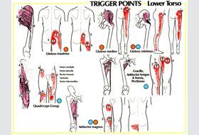 Hip Pain | GadiBody.com | Neuromuscular Therapy - Strain Counterstrain Pain Relief - Los Angeles, Santa Monica CA