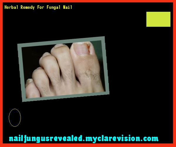 Herbal remedy for fungal nail - Nail Fungus Remedy. You have nothing to lose! Visit Site Now