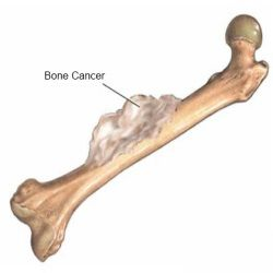 Signs And Symptoms Of Bone Cancer