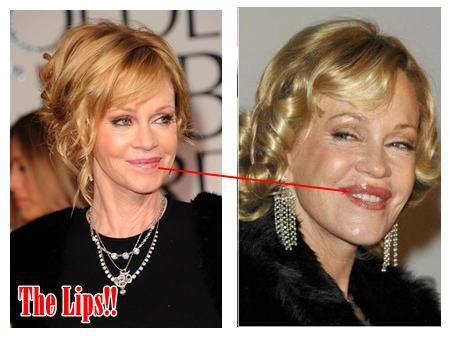 Melanie Griffith Before and After Plastic Surgery - blijkbaar zijn dat fillers