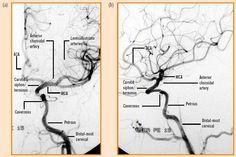 internal carotid artery segments