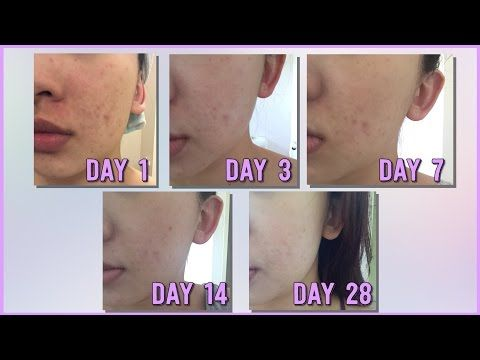 My Number One Beauty Secret to Naturally Clear Skin - YouTube