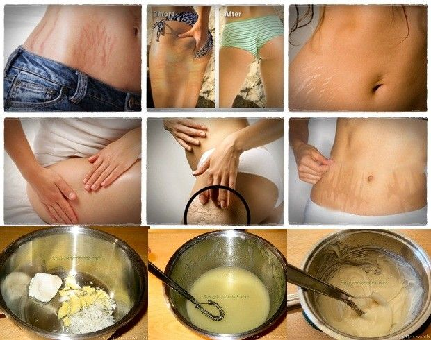 Homemade Creams for Old Stretch Marks